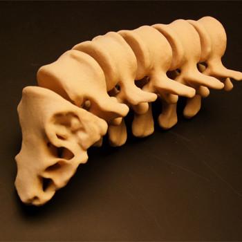 3d yazici baski prototip medikal iskelet