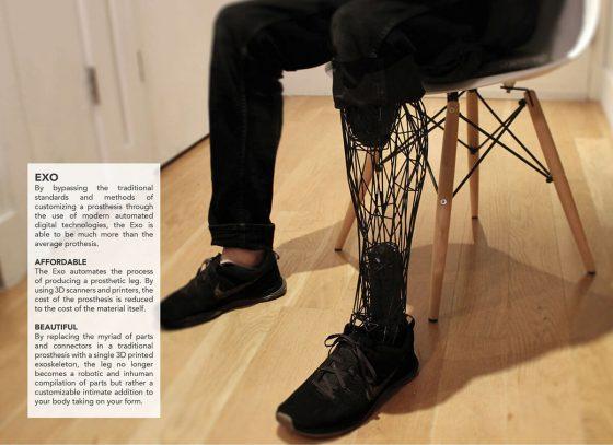 3d baskı protez