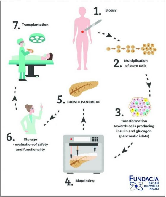 biyonik pankreas